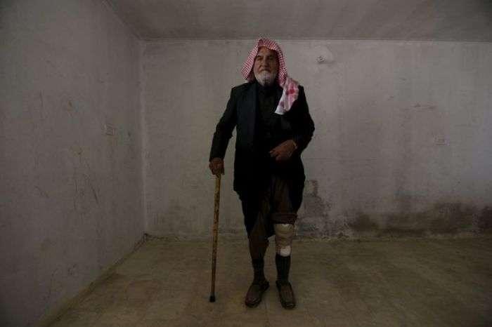 Сирійська мобільна клініка для жертв ампутантів (18 фото)