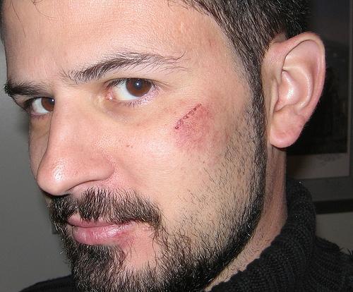 Синяк на щеке: причины возникновения и методы лечения Здоровье