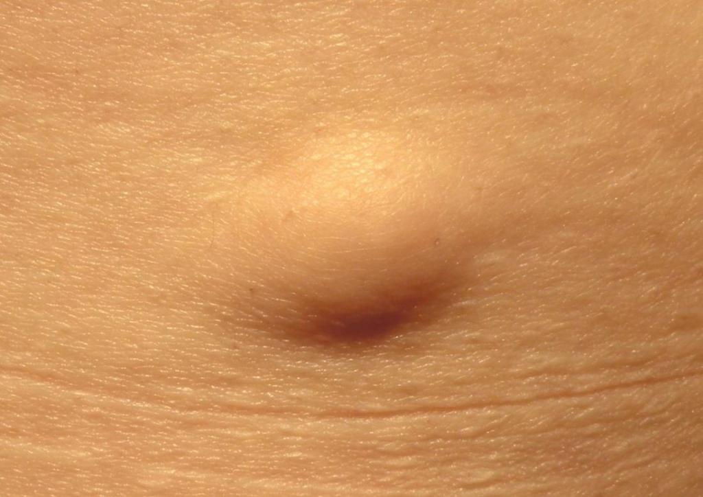 Выдавливание жировика — последствия. Как убрать жировик в домашних условиях Здоровье