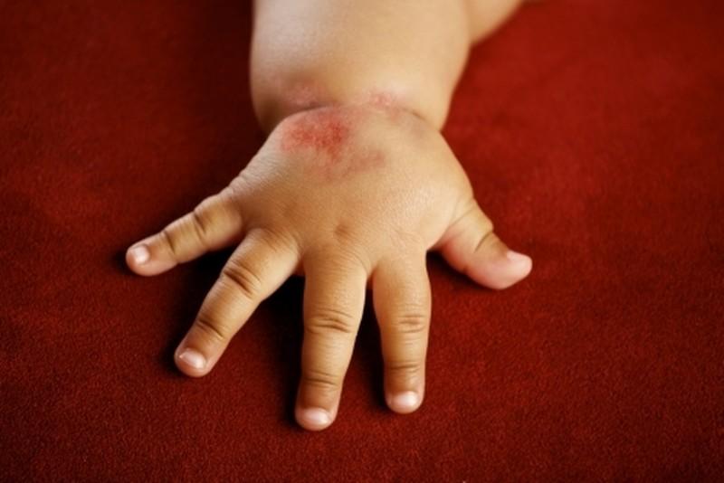 Диатез на руках у детей и взрослых: фото, симптомы и лечение Здоровье