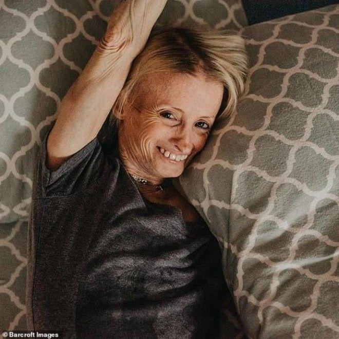 Эта женщина стареет в 8 раз быстрее обычного человека. Вот как она выглядит